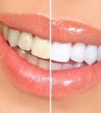 avoir les dent blanche