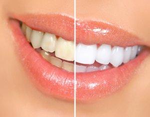les 10 meilleures astuces pour avoir des dents blanches 10 meilleurs. Black Bedroom Furniture Sets. Home Design Ideas